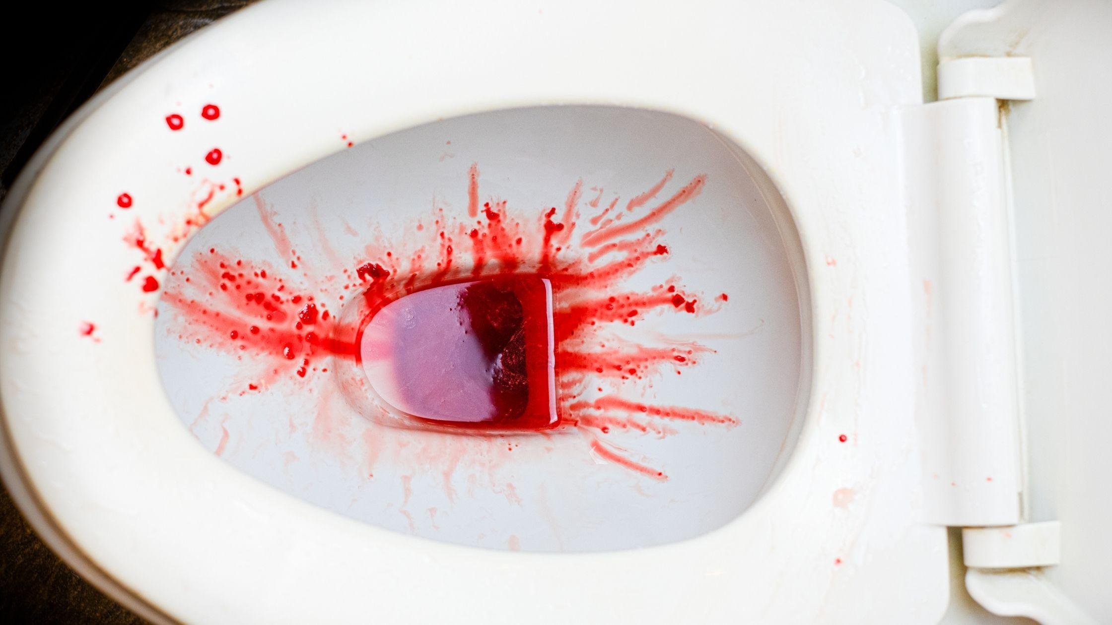 krwawienie z penisa mocz